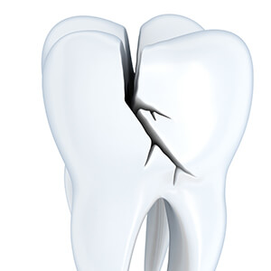 Animation of split tooth
