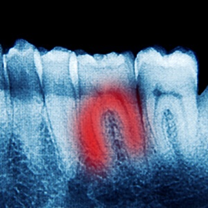 X-ray of tooth with root fracture