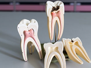 Models of healthy and damaged teeth