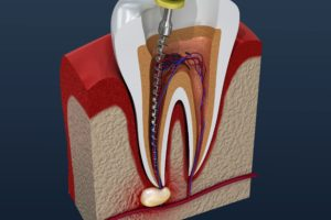 Image of tooth needing root canal retreatment